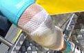 tubular-net on knee